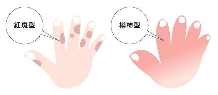 足 痒い 手のひら の 裏 手のひらで分かる病気のサイン かゆいとか赤いとか